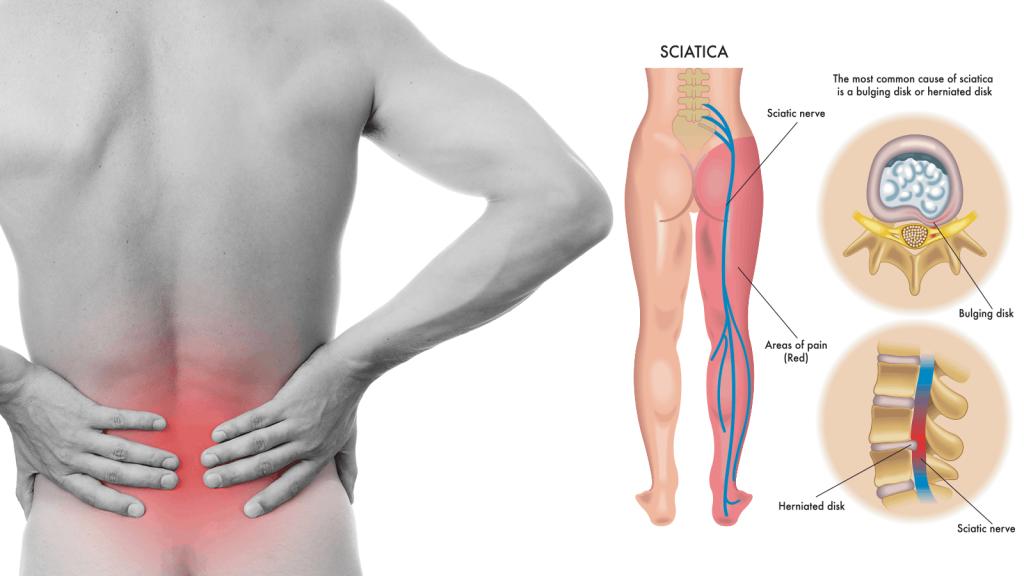 sciatica pathway