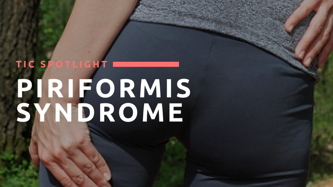 TIC Spotlight: Piriformis Syndrome